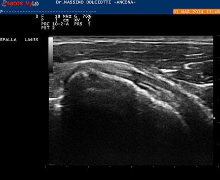Su trattamento thrombophlebitis superficiale