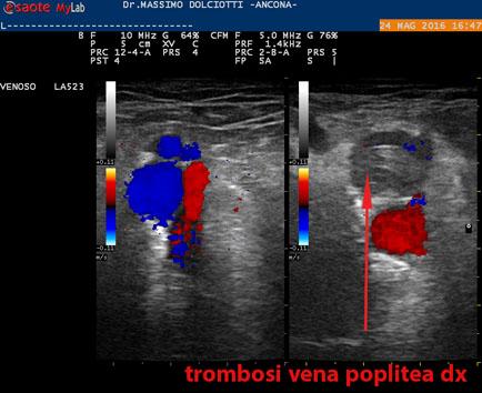 Trattamento di operazione di thrombophlebitis delle estremità più basse